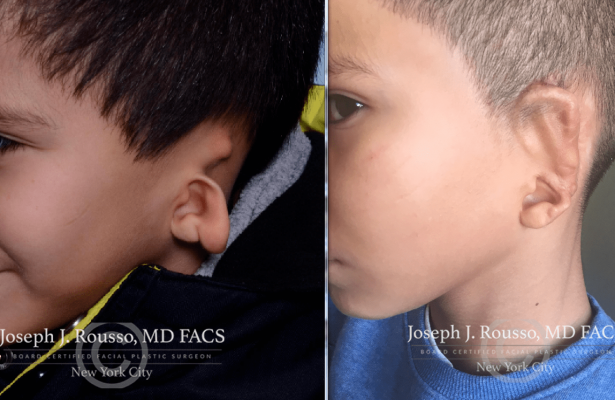 Ears & Microtia before/after photo 4