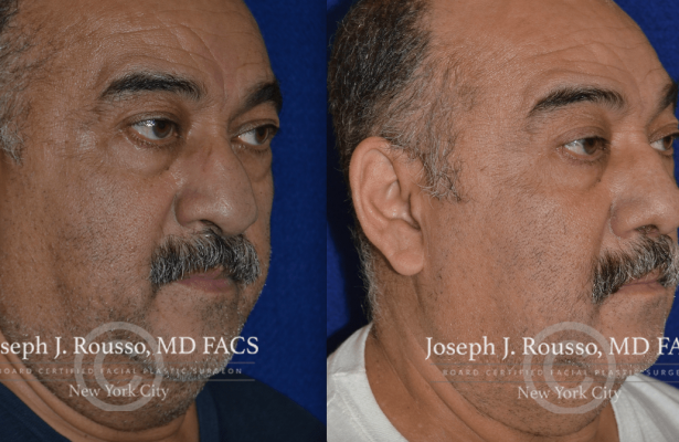 Rhinoplasty before/after photo 12
