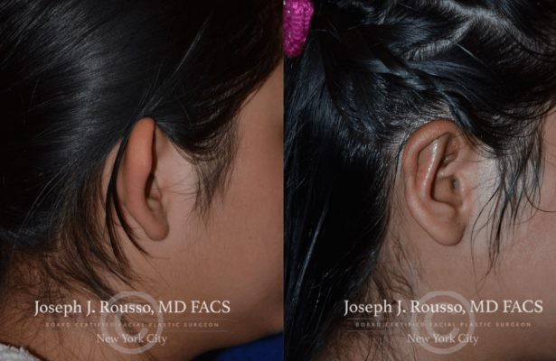 Ears & Microtia before/after photo 1