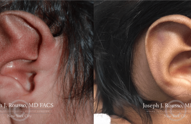 Ears & Microtia before/after photo 10