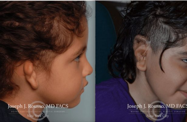 Ears & Microtia before/after photo 7