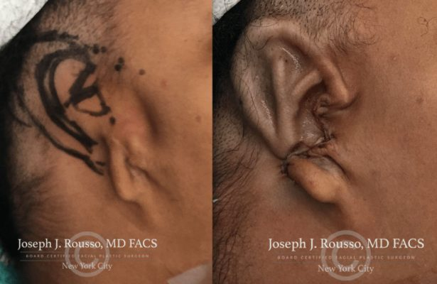 Ears & Microtia before/after photo 9