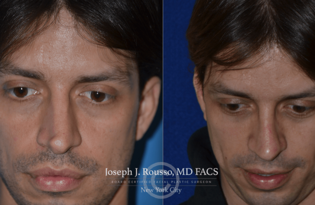 Rhinoplasty before/after photo 5