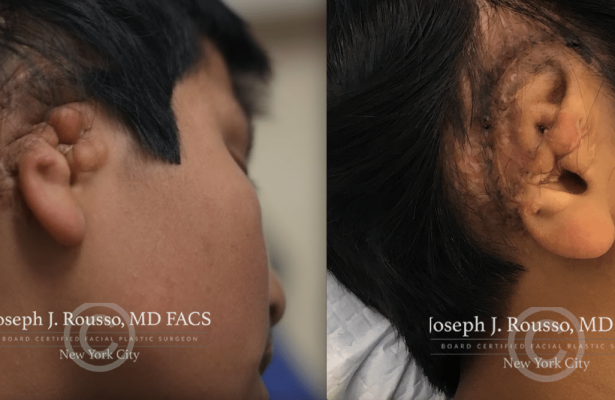 Ears & Microtia before/after photo 3
