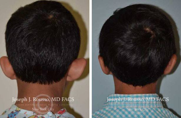 Ears & Microtia before/after photo 2