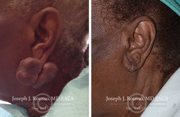 Ears & Microtia before/after photo 5