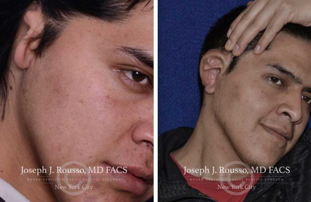 Ears & Microtia before/after photo 6