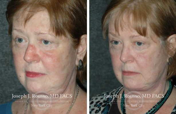 Facelift before/after photo 6