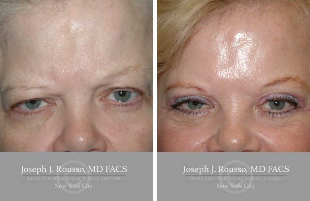 Facelift before/after photo 7