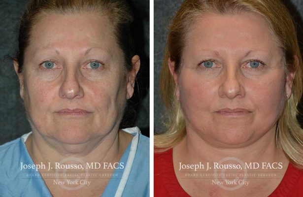Facelift before/after photo 3