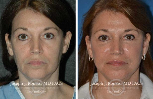 Facelift before/after photo 4