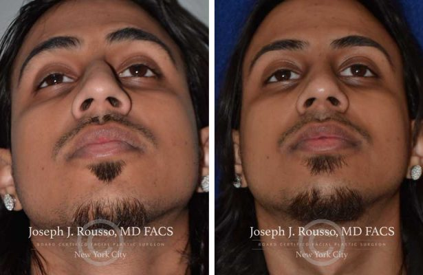 Rhinoplasty before/after photo 3