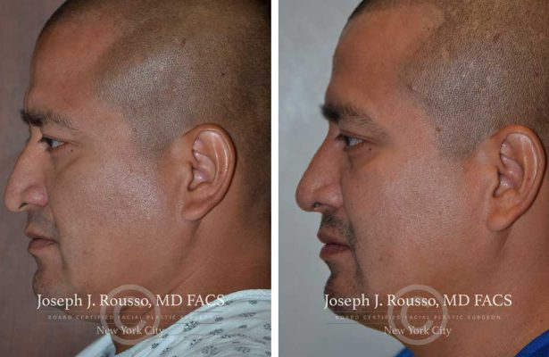 Rhinoplasty before/after photo 4