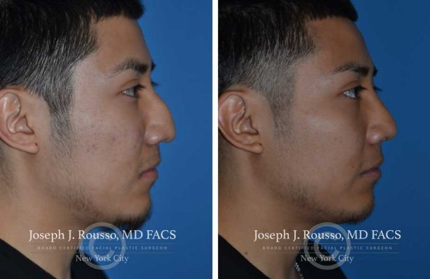 Rhinoplasty before/after photo 2