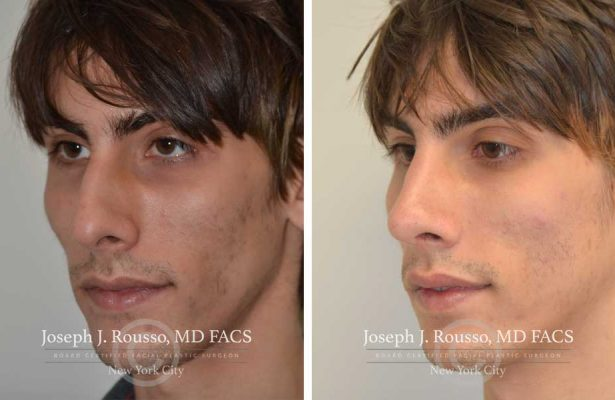 Rhinoplasty before/after photo 6