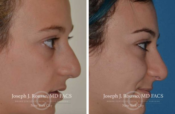 Rhinoplasty before/after photo 7