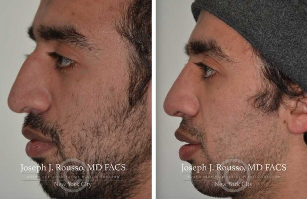 Rhinoplasty before/after photo 9