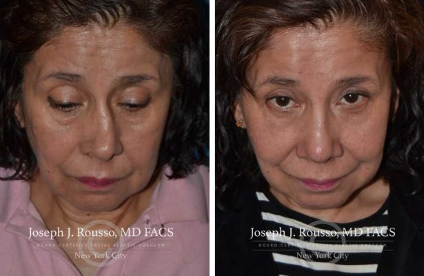 Rhinoplasty before/after photo 11