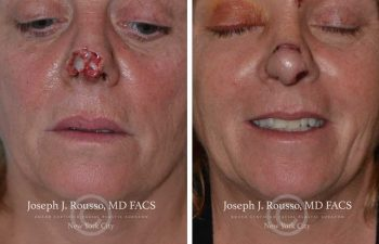 woman Before and After nose Reconstructive Surgery New York, NY