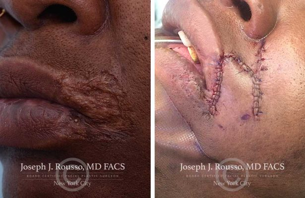Reconstructive Surgery before/after photo 10