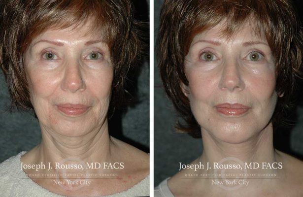 Facelift before/after photo 2