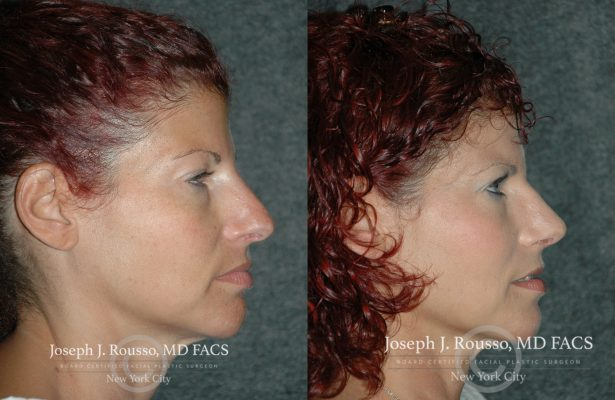 Female Rhinoplasty before/after photo 6