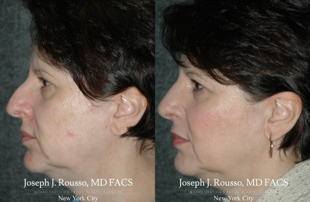 Female Rhinoplasty before/after photo 2
