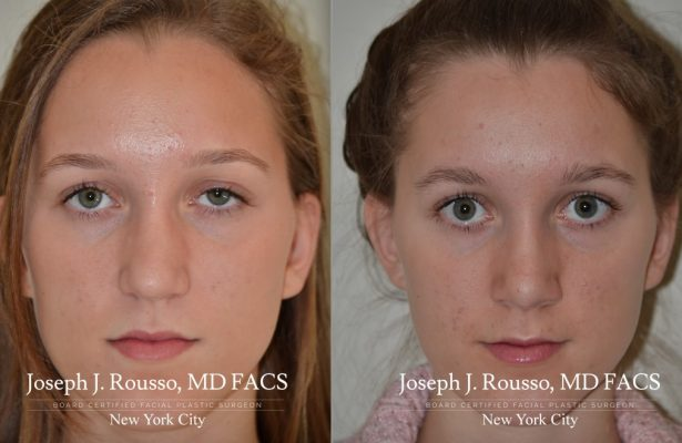 Female Rhinoplasty before/after photo 9