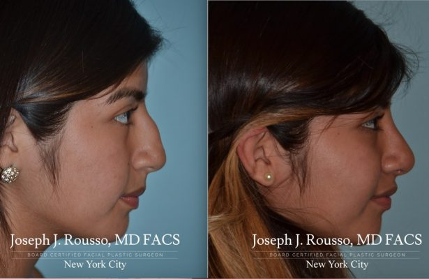 Female Rhinoplasty before/after photo 11