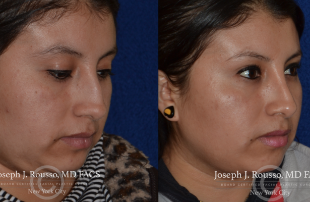 Female Rhinoplasty before/after photo 7