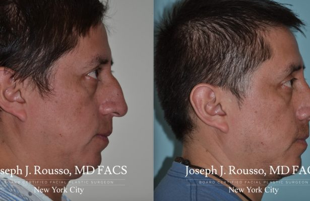 Male Rhinoplasty before/after photo 8