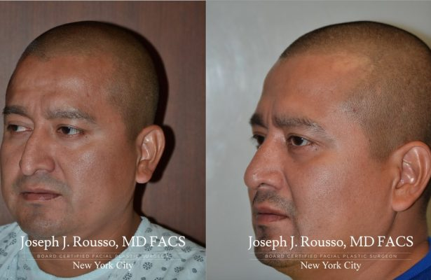 Male Rhinoplasty before/after photo 9