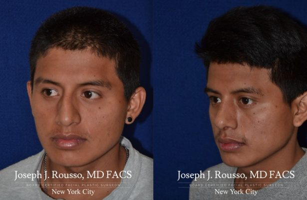 Male Rhinoplasty before/after photo 7