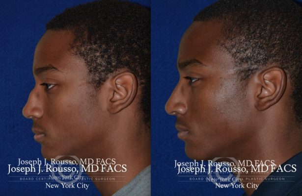 Male Rhinoplasty before/after photo 12