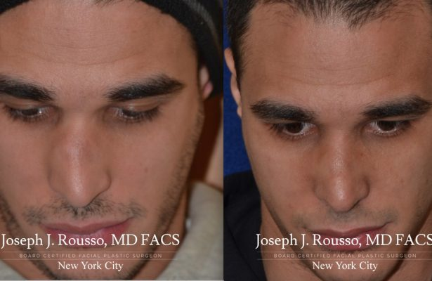 Male Rhinoplasty before/after photo 5