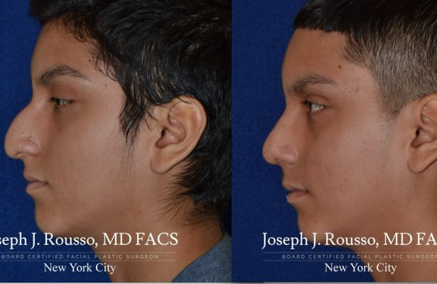 Male Rhinoplasty before/after photo 4