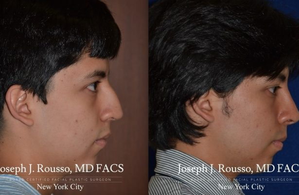Male Rhinoplasty before/after photo 3