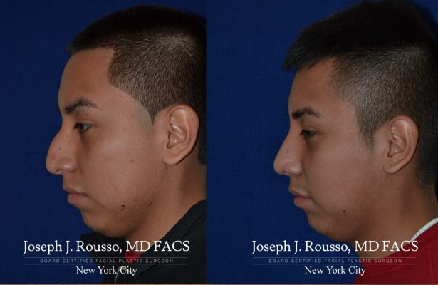 Male Rhinoplasty before/after photo 11