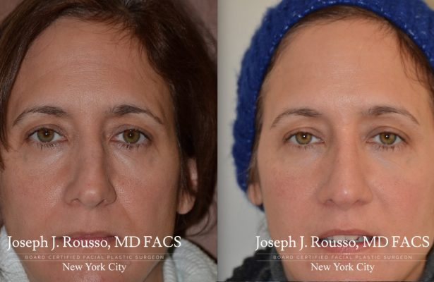 Female Rhinoplasty before/after photo 1