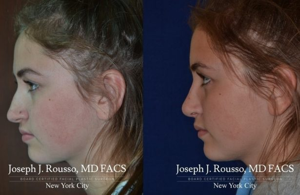 Female Rhinoplasty before/after photo 12