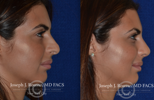 Female Rhinoplasty before/after photo 5