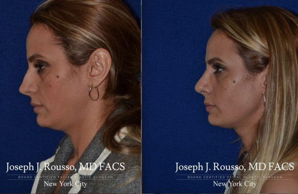 Female Rhinoplasty before/after photo 8
