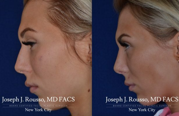 Female Rhinoplasty before/after photo 4