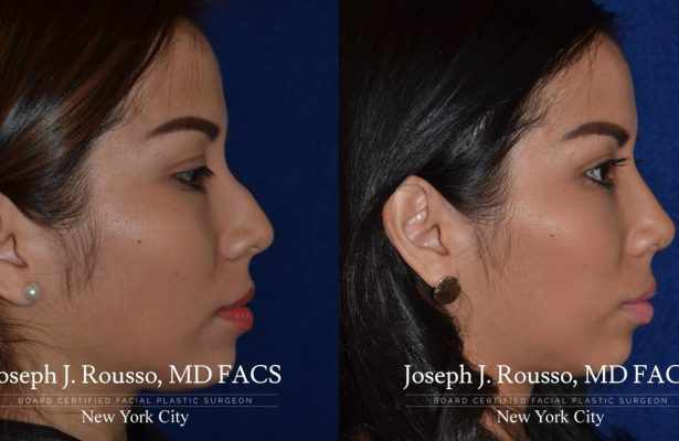 Female Rhinoplasty before/after photo 3