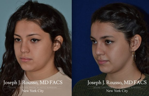 Female Rhinoplasty before/after photo 10