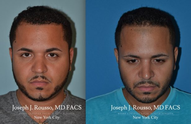 Male Rhinoplasty before/after photo 10