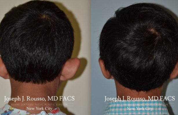 Otoplasty/Ear Pinning before/after photo 2