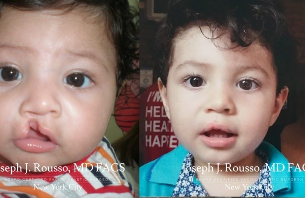Cleft Lip & Palate before/after photo 10