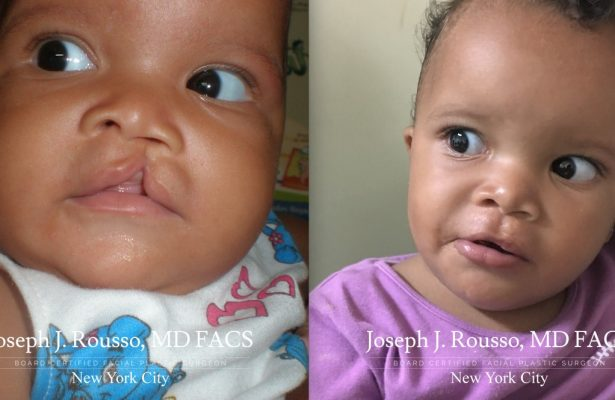 Cleft Lip & Palate before/after photo 11