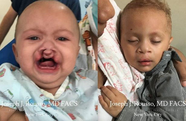 Cleft Lip & Palate before/after photo 12